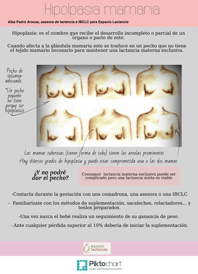 Esquema sobre la Hipolapsia mamaria